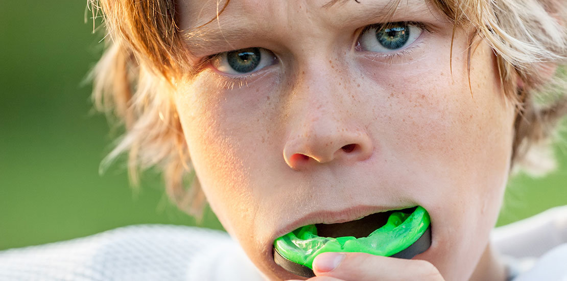 Why it's Important to Wear a Mouth Guard