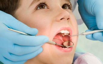 What You Need to Know About Dental Sealants