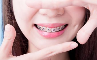 Taking Care of Your Clear Braces
