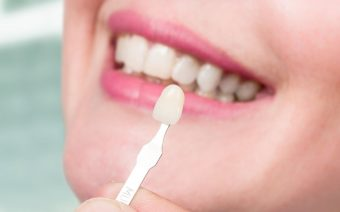 How Porcelain Veneers Can Transform a Smile